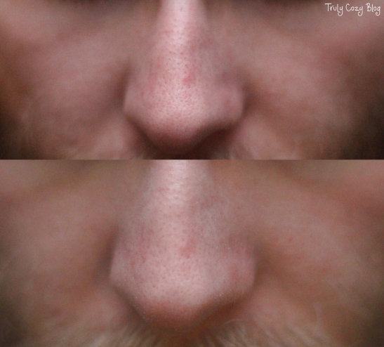 BlackheadRemoval-A-Before-After